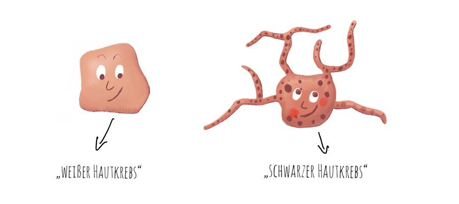 Ursprungszelle Hautkrebs, Sonne löst Hautkrebs aus