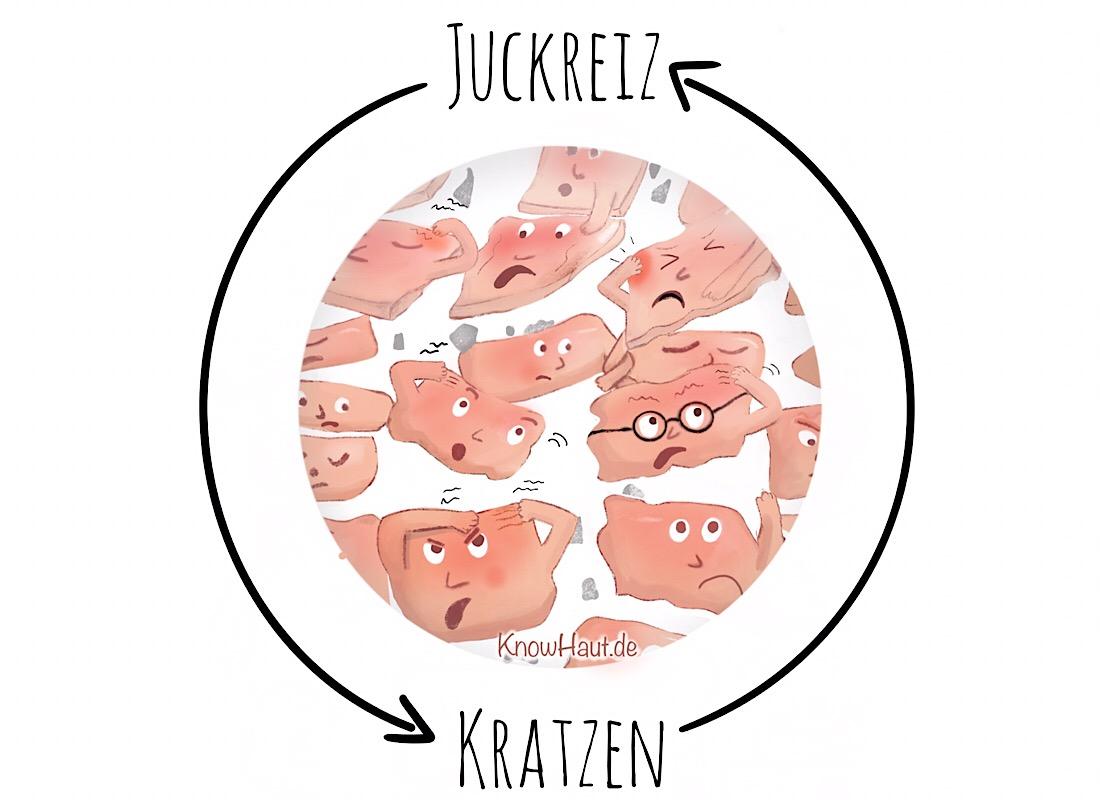 Juckreiz-Kratz-Zyklus