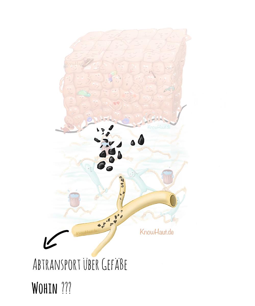 NL10 Verteilung von Tattoofarbe im Körper