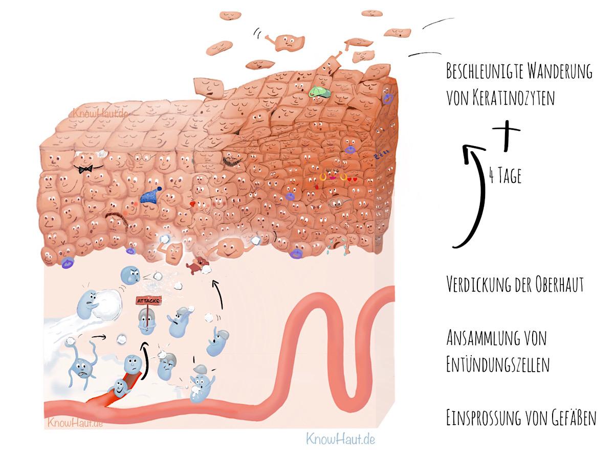 Histologie Psoriasisplaque
