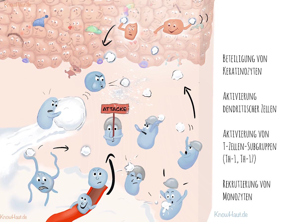 Beteiligung von Keratinozyten