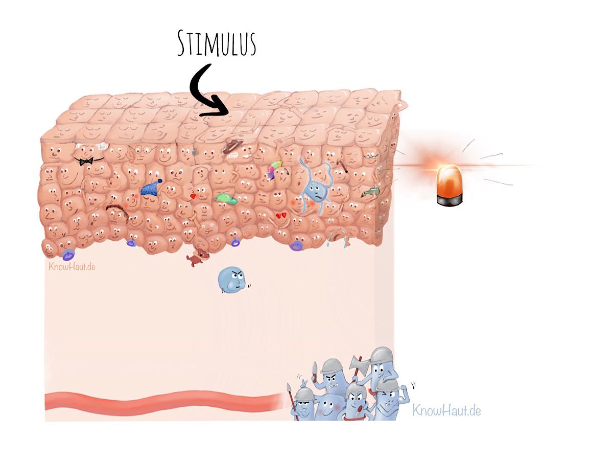 Immunreaktion bei Psoriasis